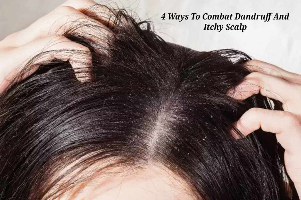 4 Ways To Combat Dandruff And Itchy Scalp